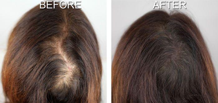 saç dökülmesi ve çözümü