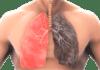 akciğer temizleme